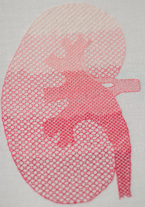 Blackwork kidney by GeekySqueaky